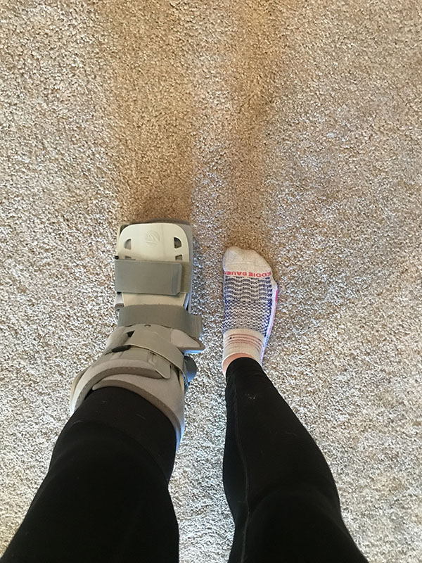 Mile Markers: Stress Fracture